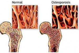 huesos con osteoporosis 1 300x202 - POR QUÉ LAS SUECAS SUFREN MÁS OSTEOPOROSIS