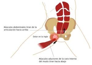 Lesion Atleta Pubalgia  300x212 - TRATAMIENTO Y PREVENCIÓN DE LA PUBALGIA