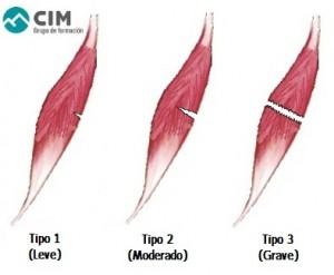 tipos desgarro muscular 300x247 - CÓMO DARSE CUENTA DE UN DESGARRO MUSCULAR