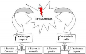HIPONATREMIA 300x188 - HIPONATREMIA